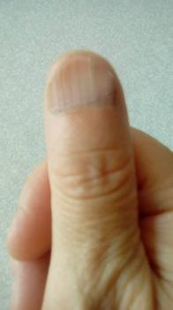 スプーン爪1.jpg